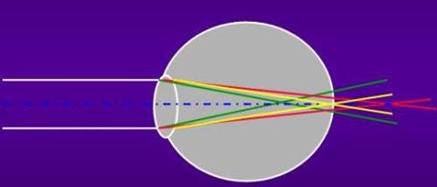光谱与近视