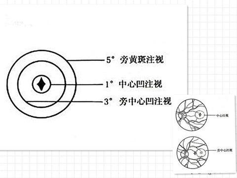 注视性质2