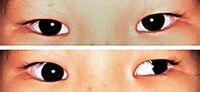 斜视手术1