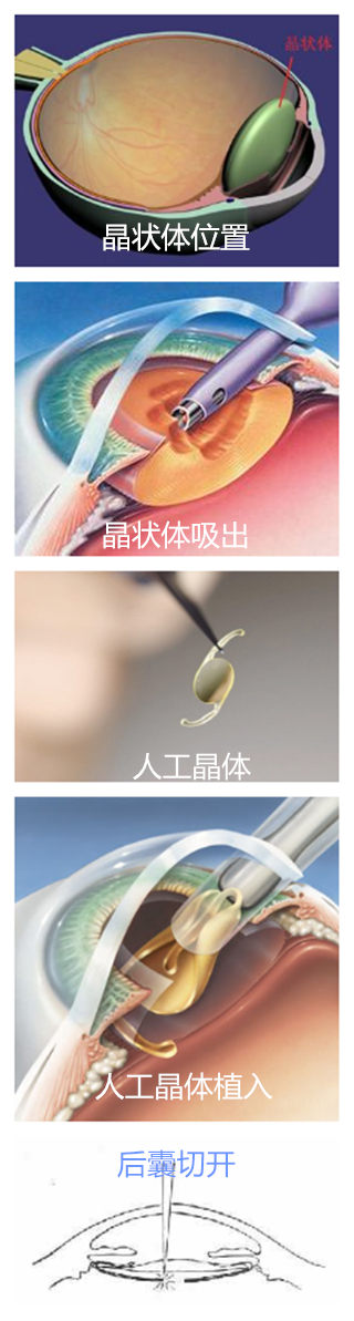 IOL手术