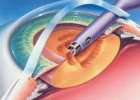 先天性白内障手术是怎样的过程?