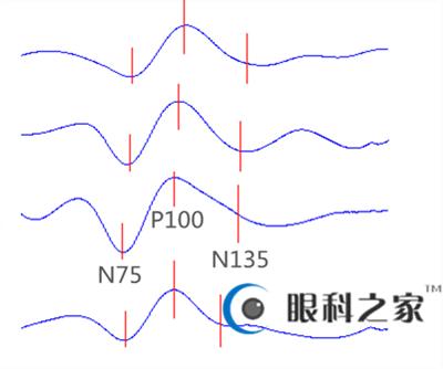 VEP波形