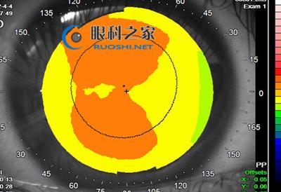 角膜地形图
