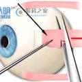 斜视手术的完整过程是什么样的?
