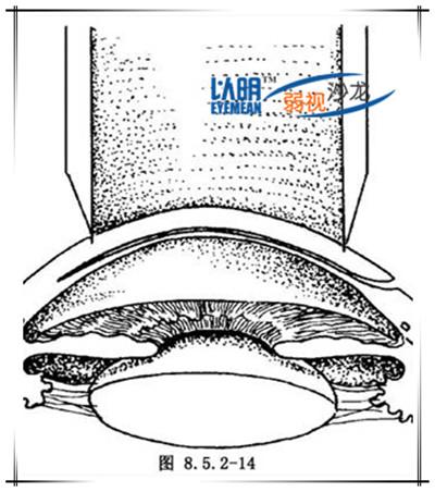 角膜板层移植