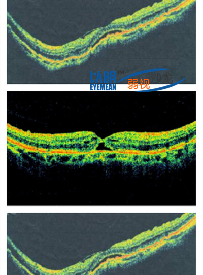Macular splitting