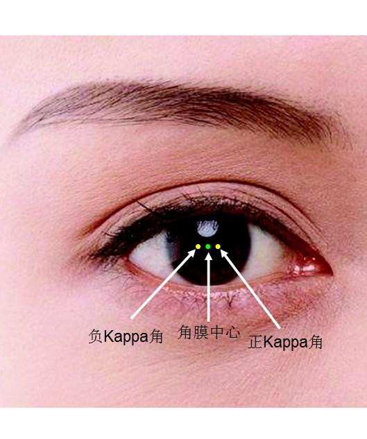 Kappa角是什么?Kappa角问题会导致斜视手术失败?